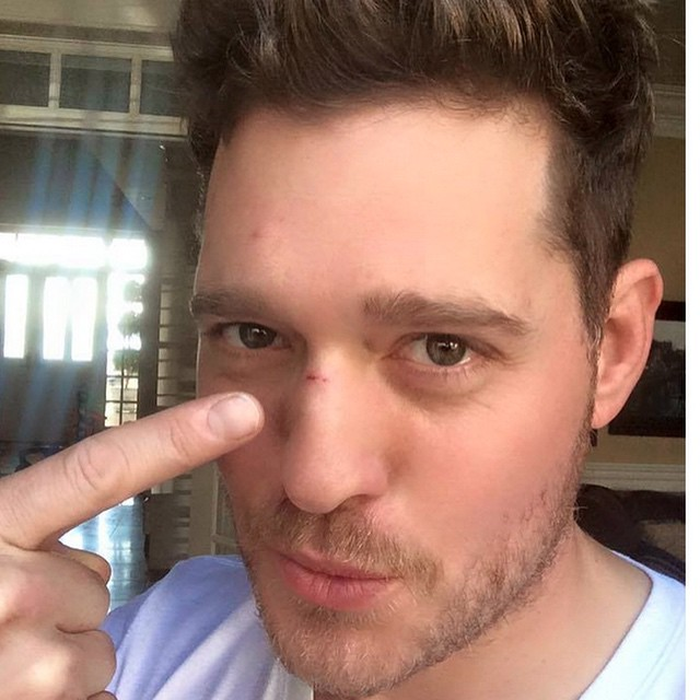Michael Bublé Instagram: My 1st daddy injury. 2 baby teeth to the nose. I'll tell people I got in a fight...